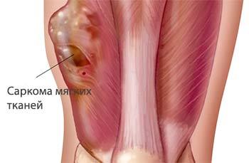 Саркома мягких тканей и ее лечение    Лучевая терапия при саркоме мягких тканей